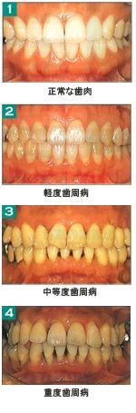 痛い 歯茎 腫れ て